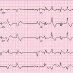 Bidirectional Ventricular Tachycardia